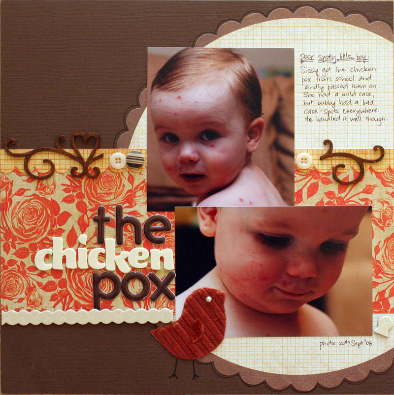 Chicken_pox